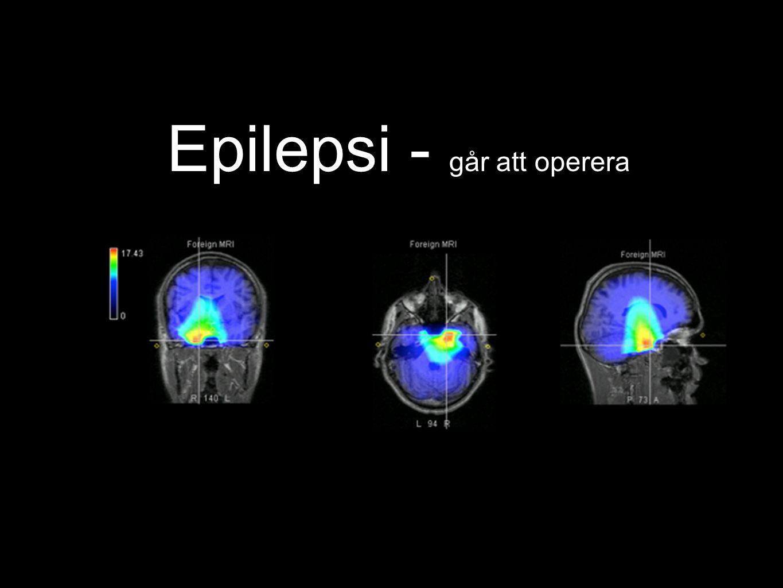 Epilepsi - går att operera