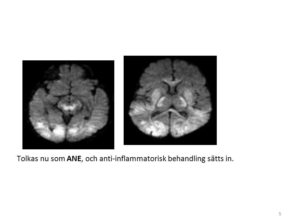 5 Tolkas nu som ANE, och anti-inflammatorisk behandling sätts in.
