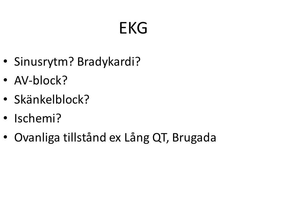 EKG Sinusrytm? Bradykardi? AV-block? Skänkelblock? Ischemi? Ovanliga tillstånd ex Lång QT, Brugada