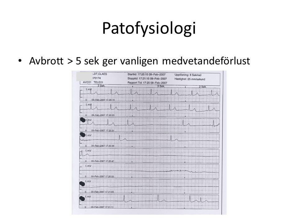 Patofysiologi Avbrott > 5 sek ger vanligen medvetandeförlust