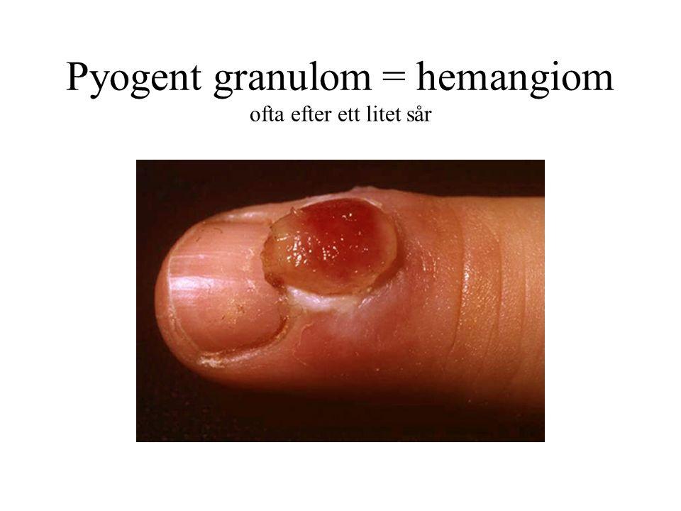 Pyogent granulom = hemangiom ofta efter ett litet sår