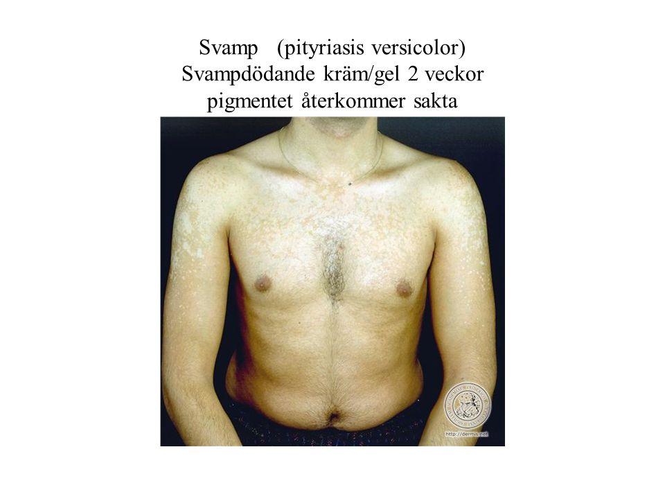 Svamp (pityriasis versicolor) Svampdödande kräm/gel 2 veckor pigmentet återkommer sakta