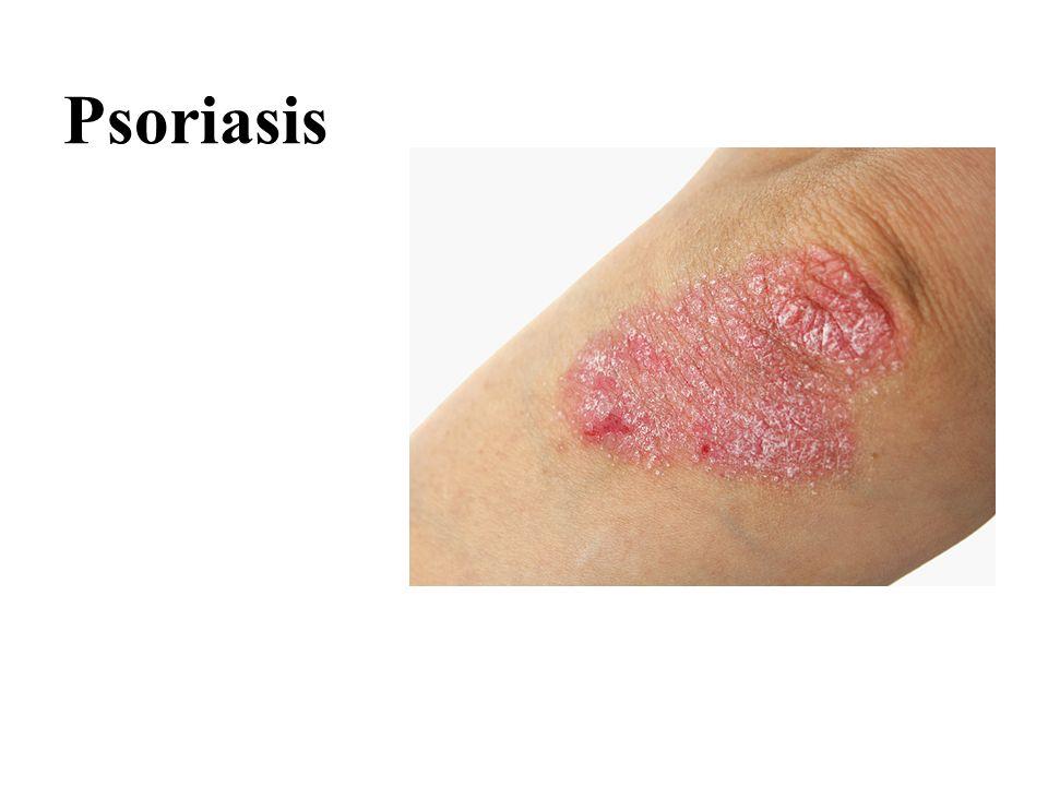 Psoriasis