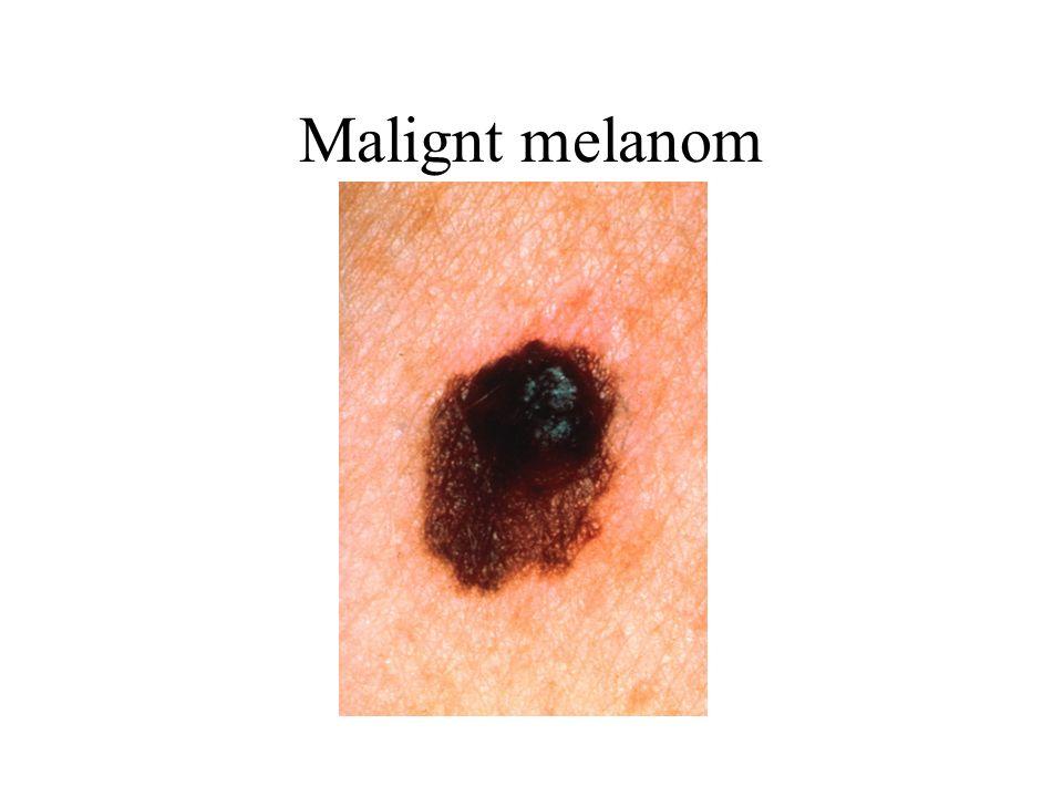 Malignt melanom