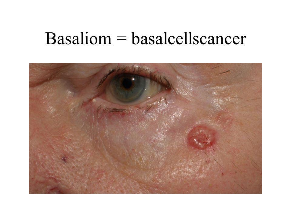 Basaliom = basalcellscancer