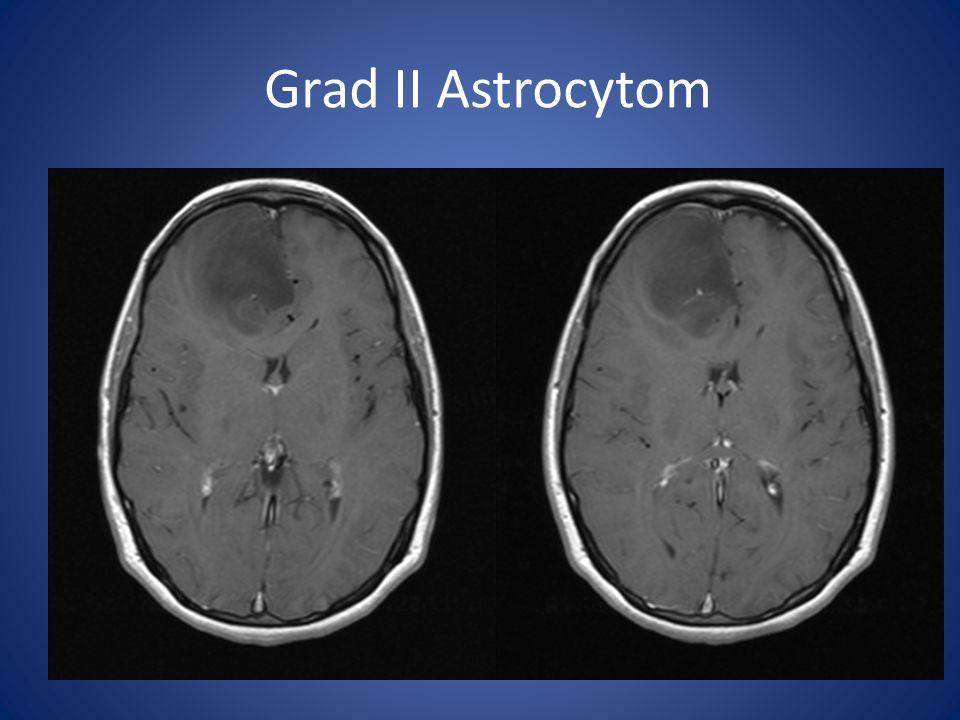 Grad II Astrocytom