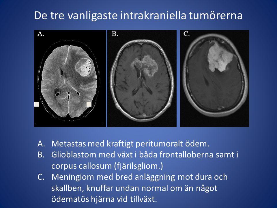 De tre vanligaste intrakraniella tumörerna A.Metastas med kraftigt peritumoralt ödem. B.Glioblastom med växt i båda frontalloberna samt i corpus callo