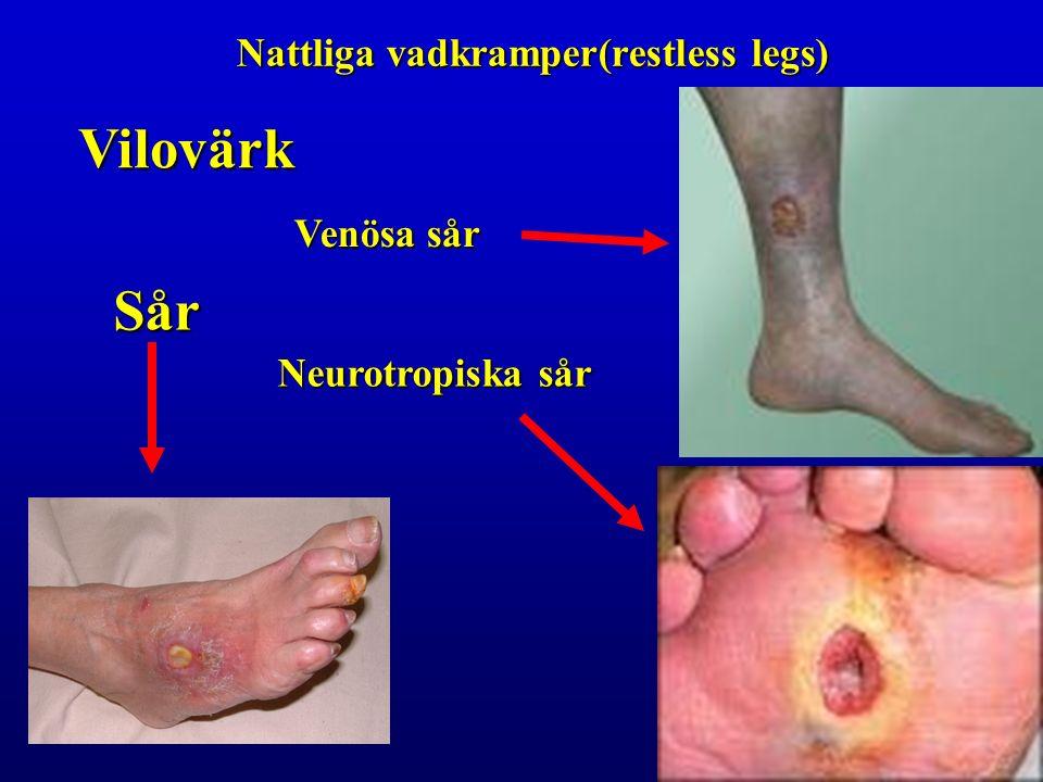 Vilovärk Nattliga vadkramper(restless legs) Sår Venösa sår Neurotropiska sår