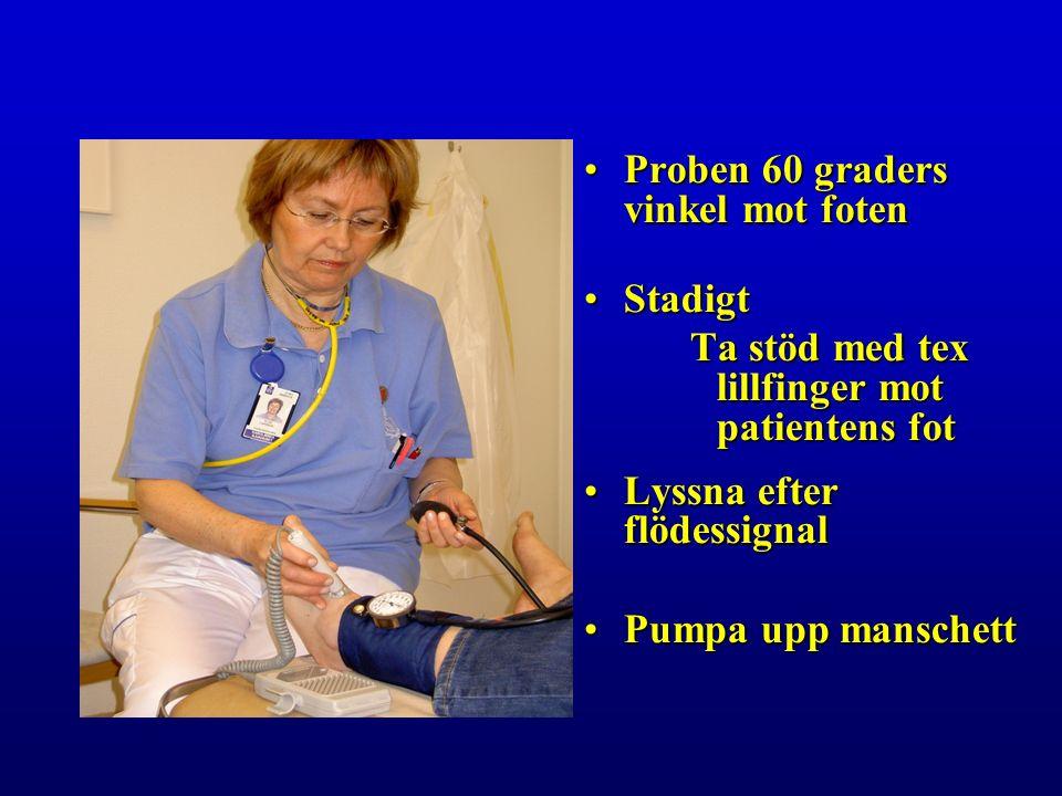 Proben 60 graders vinkel mot fotenProben 60 graders vinkel mot foten StadigtStadigt Ta stöd med tex lillfinger mot patientens fot Lyssna efter flödessignalLyssna efter flödessignal Pumpa upp manschettPumpa upp manschett