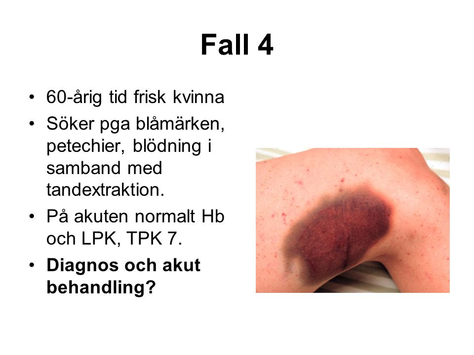 Fall 4 60-årig tid frisk kvinna Söker pga blåmärken, petechier, blödning i samband med tandextraktion.
