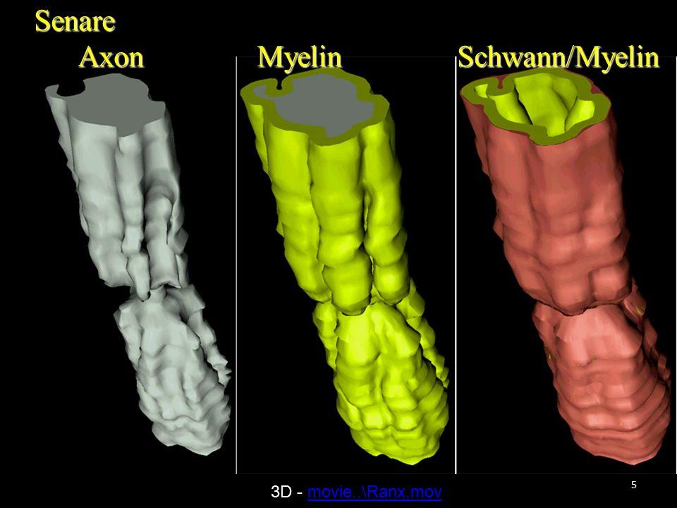 6 Tidiga 3D – rekonstruktioner av hjärnbarken