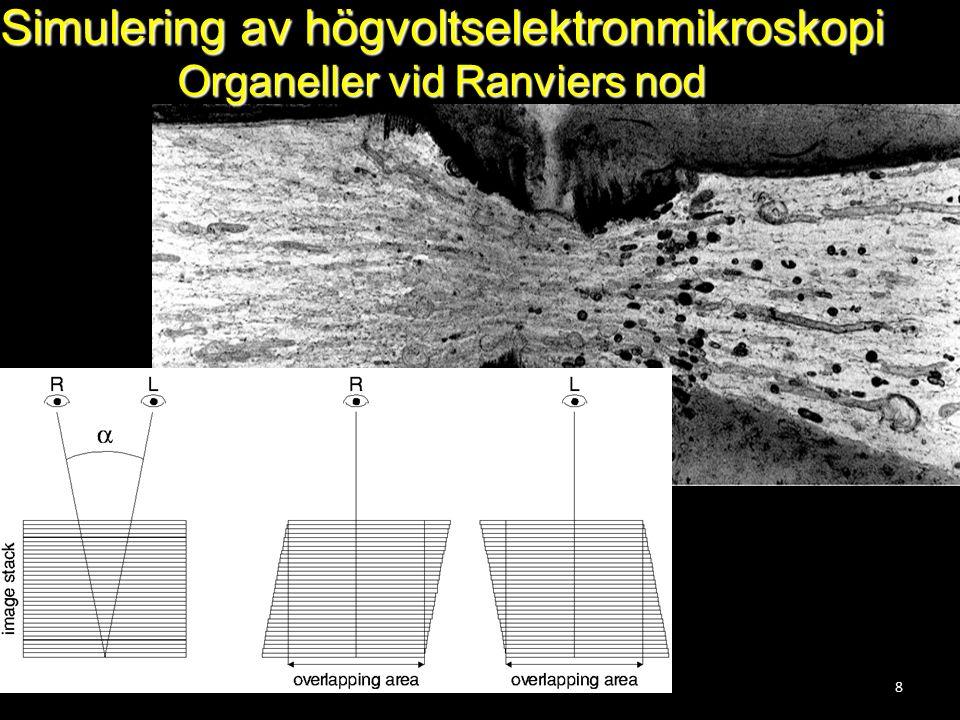 8 Simulering av högvoltselektronmikroskopi Organeller vid Ranviers nod
