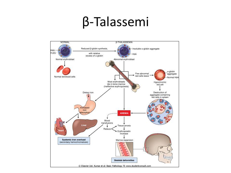 β-Talassemi