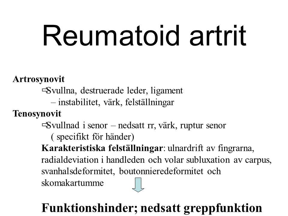 Reumatoid artrit Artrosynovit  Svullna, destruerade leder, ligament – instabilitet, värk, felställningar Tenosynovit  Svullnad i senor – nedsatt rr,