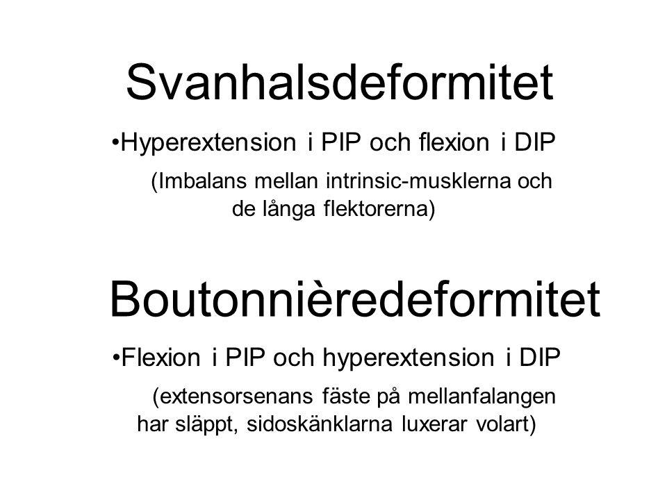 Svanhalsdeformitet Hyperextension i PIP och flexion i DIP (Imbalans mellan intrinsic-musklerna och de långa flektorerna) Boutonnièredeformitet Flexion