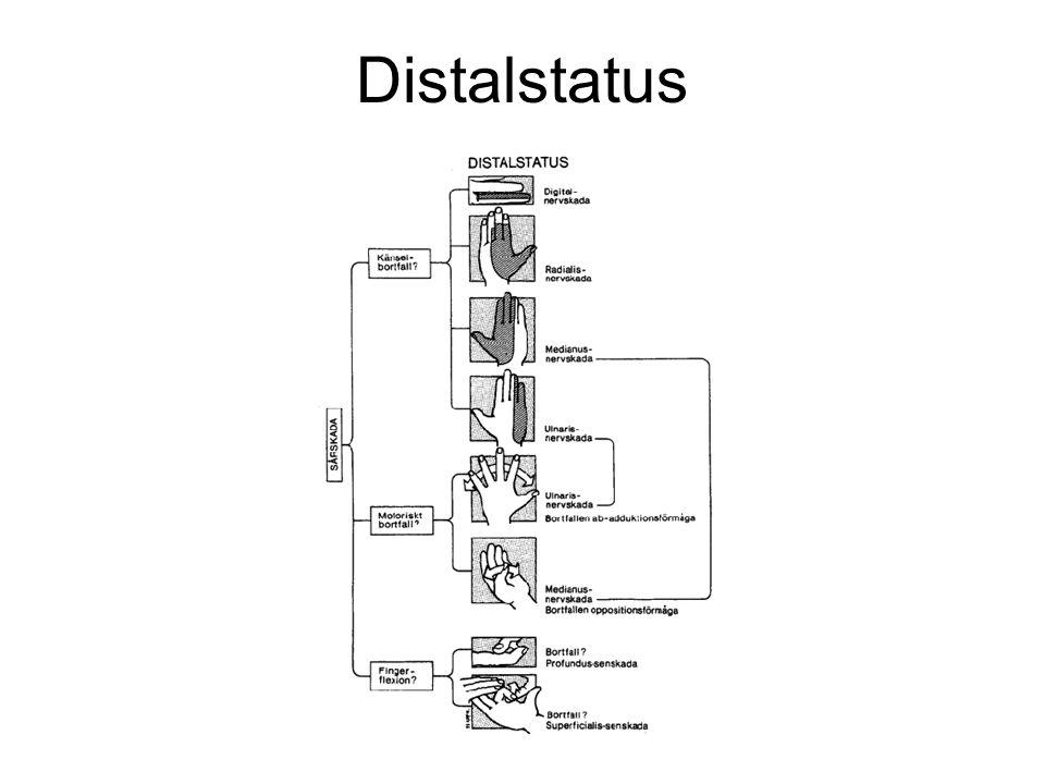 Nervskada Bortfall av sensibiliteten distalt om skadan Testa 2-PD på vardera halvan av fingertoppen med gem eller pincett.