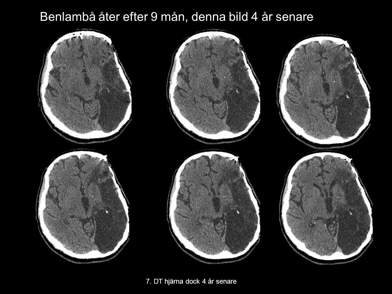 Benlambå åter efter 9 mån, denna bild 4 år senare 7. DT hjärna dock 4 år senare
