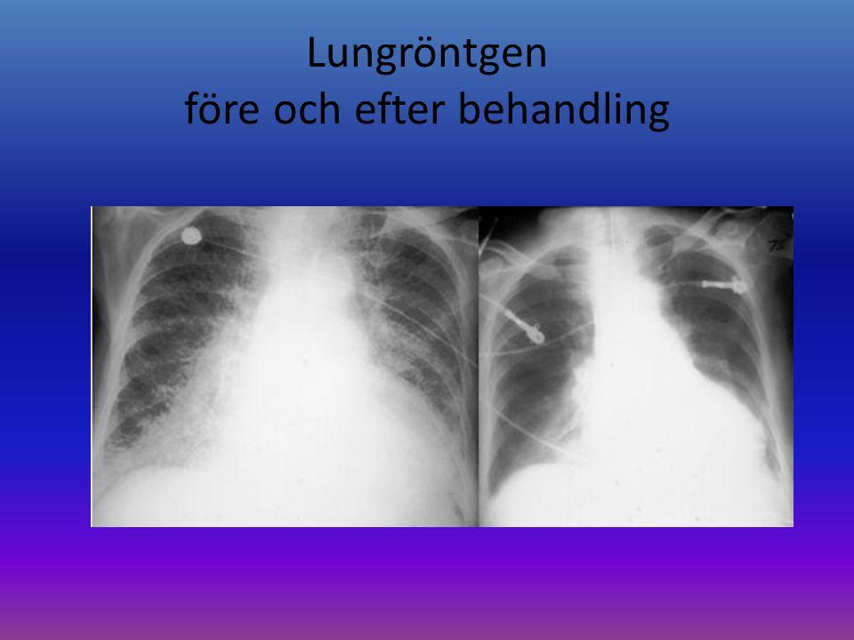 Lungröntgen före och efter behandling