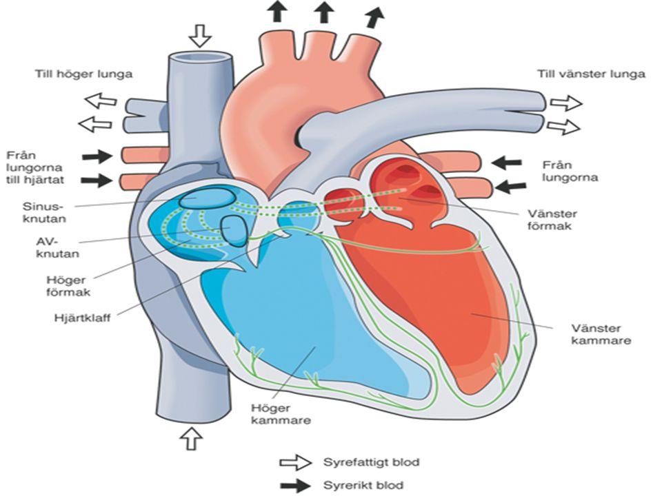 Akut hjärtsvikt-Symtom Andningspåverkan Hjärtklappning Ronki (astma cardiale) kan förekomma Kallsvett, perifer cyanos och kyla Kardiogen chock – – hypotension – – oliguri – – förvirring