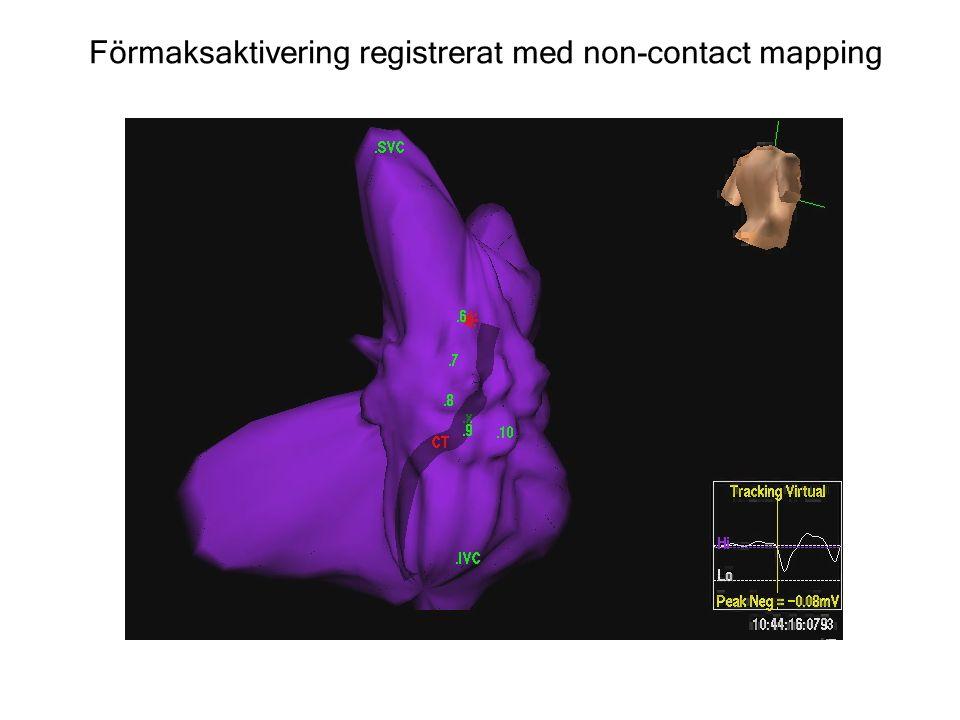 Förmaksaktivering registrerat med non-contact mapping