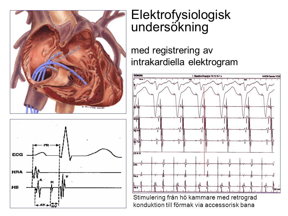 Elektrofysiologisk undersökning med registrering av intrakardiella elektrogram Stimulering från hö kammare med retrograd konduktion till förmak via accessorisk bana