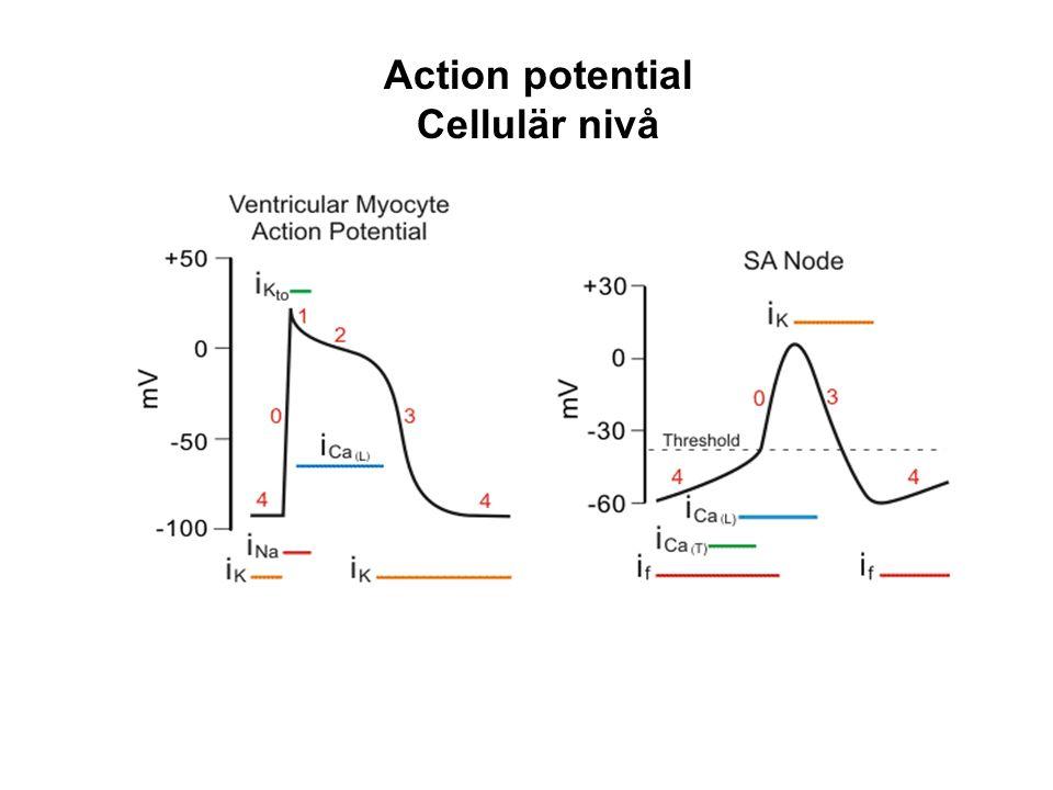 Makro re-entry förmakstakykardier – Ej isoelektrisk baslinje mellan P-vågorna CTI fladder Perimitralfladder