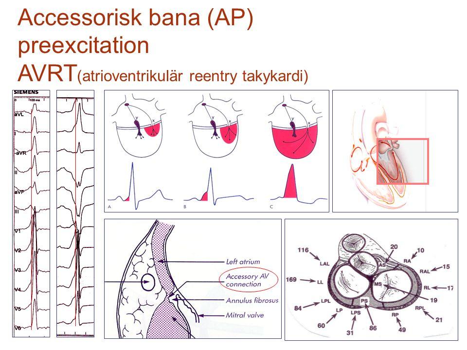 Accessorisk bana (AP) preexcitation AVRT (atrioventrikulär reentry takykardi)