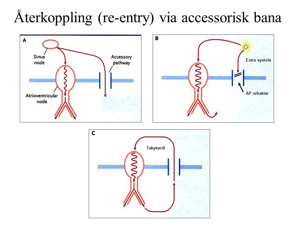 Återkoppling (re-entry) via accessorisk bana Extra systole AP refraktär Takykardi