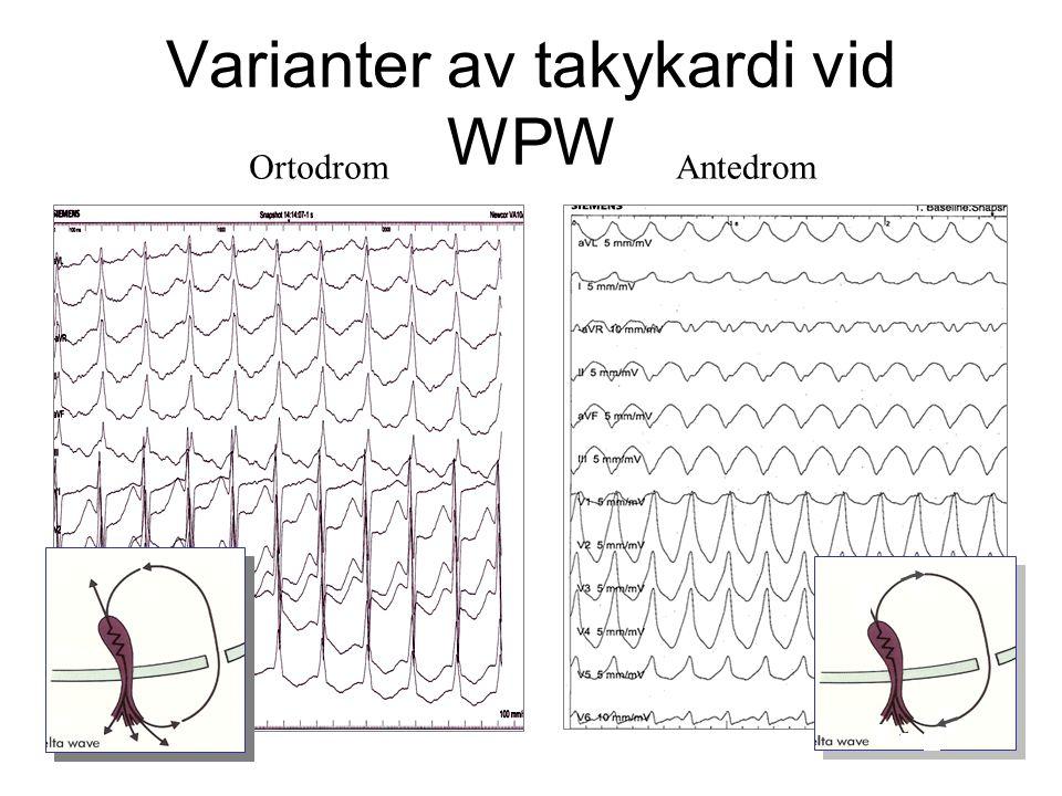 Varianter av takykardi vid WPW OrtodromAntedrom