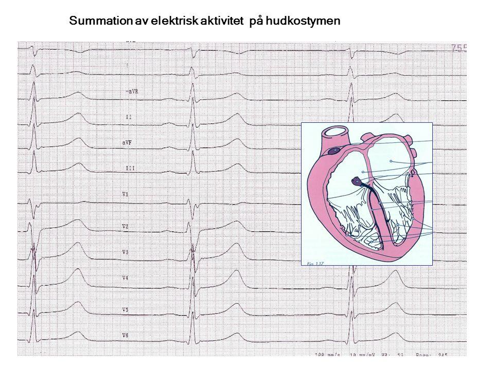 Elektrofysiologiska begrepp Konduktionstid: fortledningshastighet i vävnaden Refraktäritet: Den tid som måste förlöpa innan vävnaden kan exciteras igen Heterogenicitet: Såväl hastighet som refraktäritet kan variera lokalt i hjärtvävnad, ex vis i förmaksmuskel- vävnad eller i AV-noden Block : Fixa och funktionella