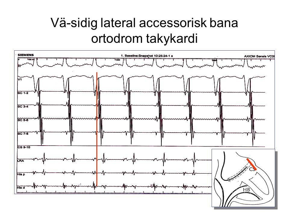 Vä-sidig lateral accessorisk bana ortodrom takykardi