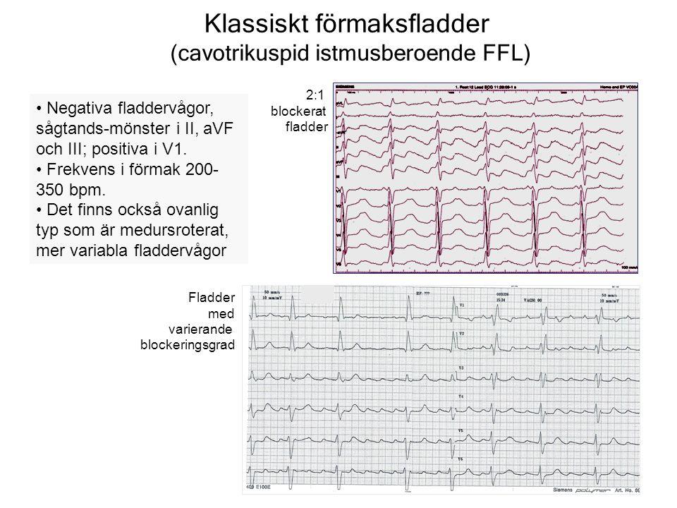 Klassiskt förmaksfladder (cavotrikuspid istmusberoende FFL) Negativa fladdervågor, sågtands-mönster i II, aVF och III; positiva i V1.