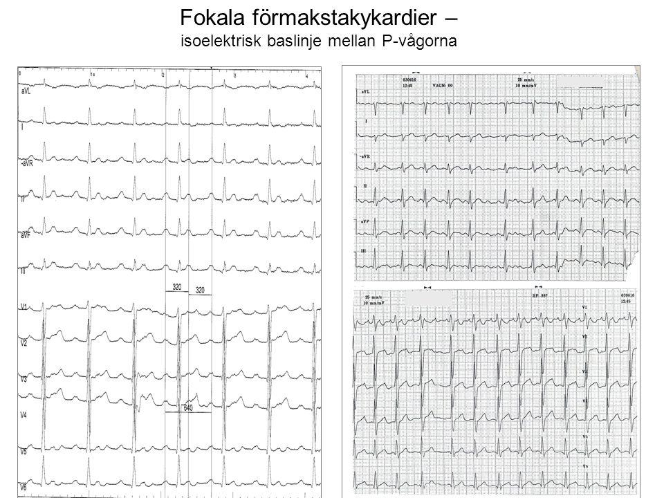 Fokala förmakstakykardier – isoelektrisk baslinje mellan P-vågorna