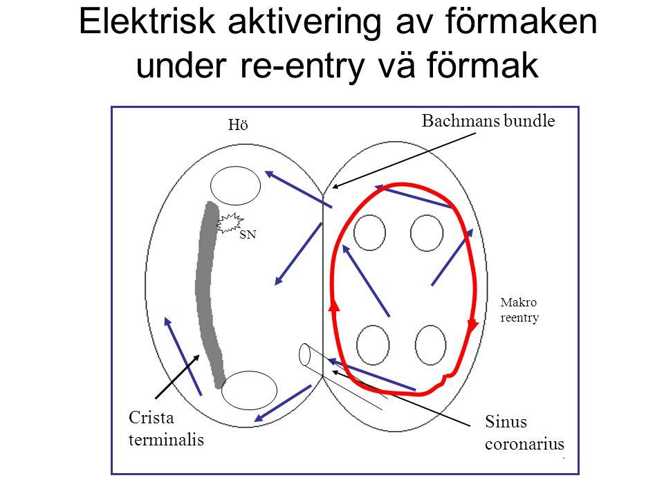 Elektrisk aktivering av förmaken under re-entry vä förmak Hö Crista terminalis Bachmans bundle Sinus coronarius SN Makro reentry