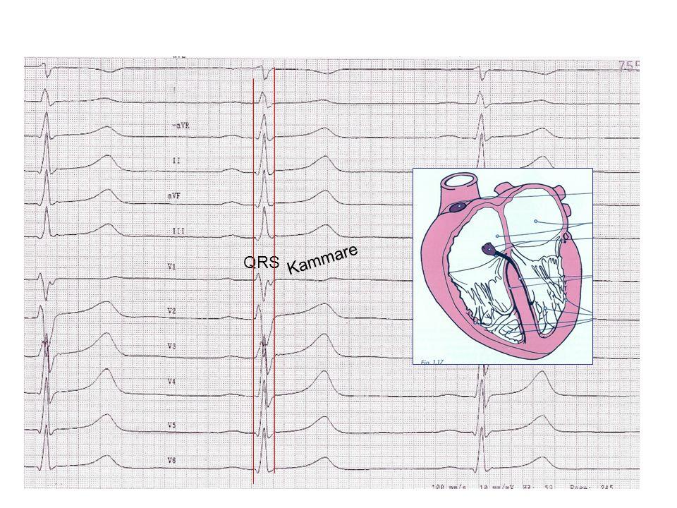 Elektrisk aktivering av förmaken under SR Hö Crista terminalis Bachmans bundle Sinus coronarius
