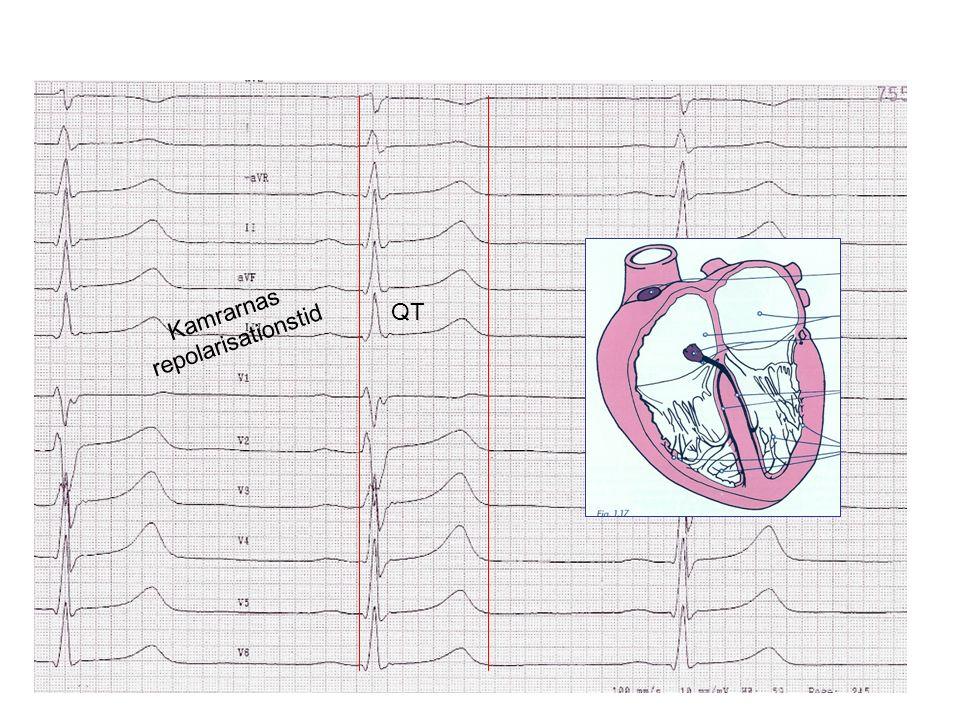 Sinusknuteaktivering basalt och under isoprenalin CT 70 150 V cava sup V cava inf Tricuspidalis Crista terminals