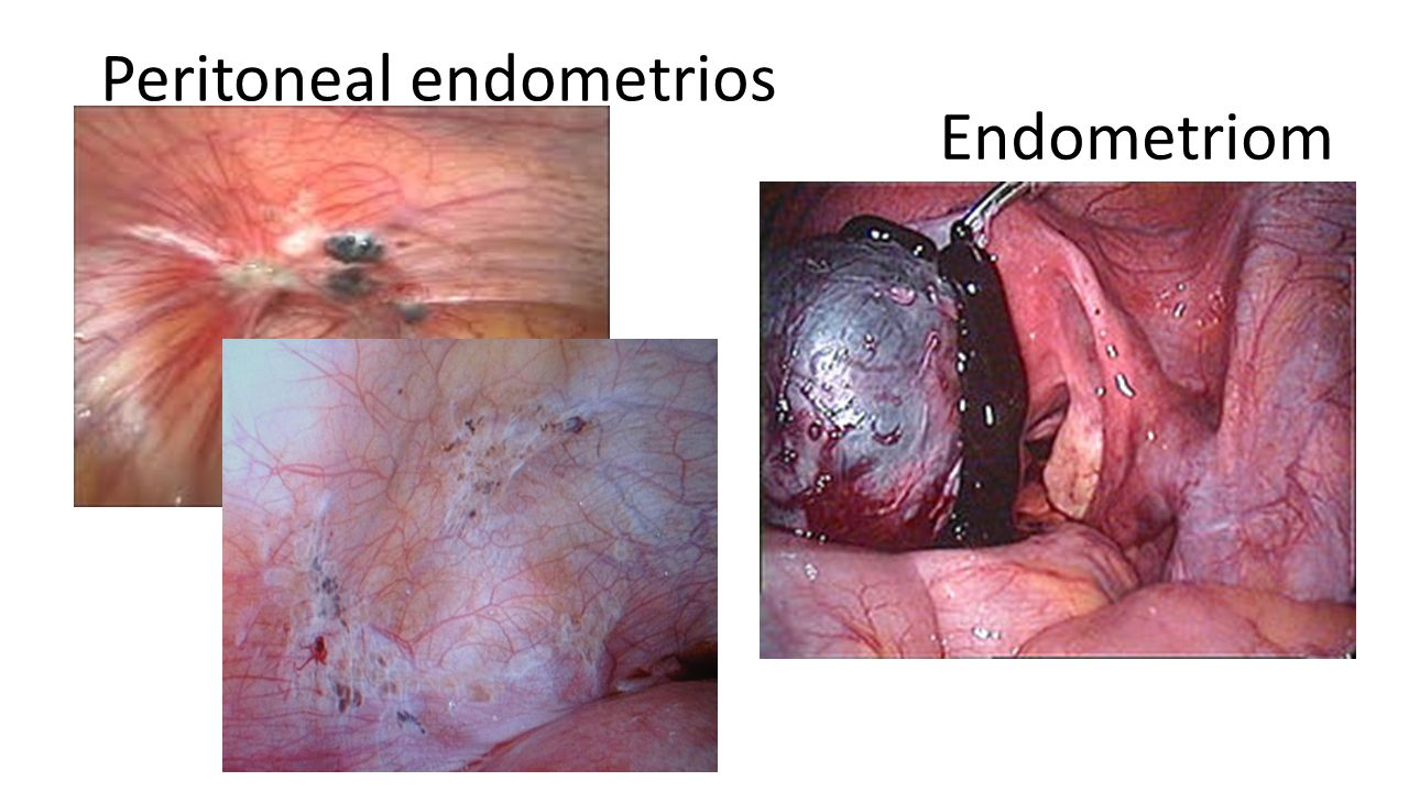 Peritoneal endometrios Endometriom