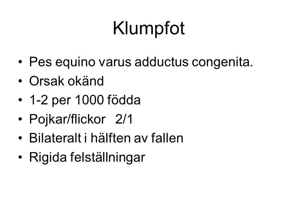 Klumpfot Pes equino varus adductus congenita.