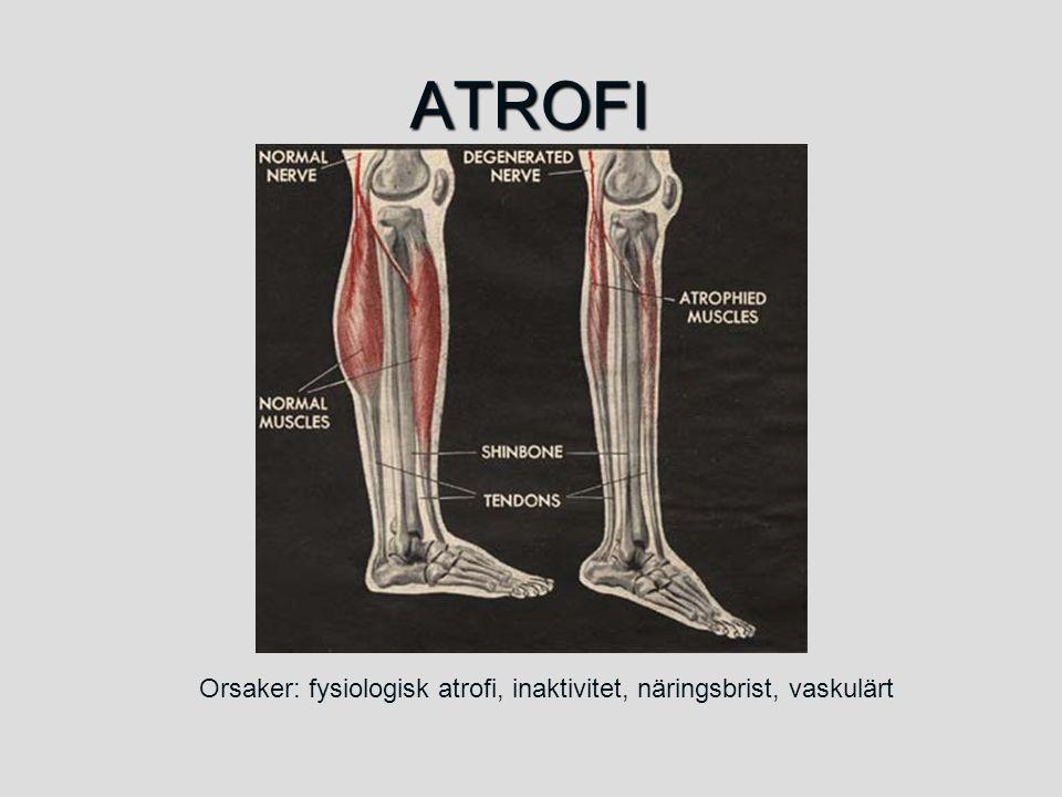 ATROFI Orsaker: fysiologisk atrofi, inaktivitet, näringsbrist, vaskulärt