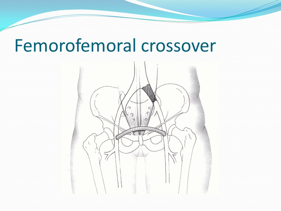 Femorofemoral crossover