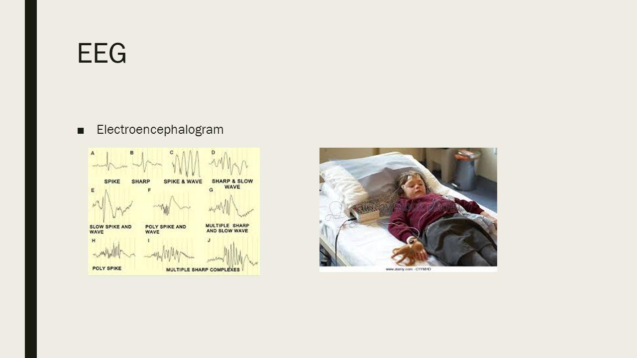 EEG ■Electroencephalogram