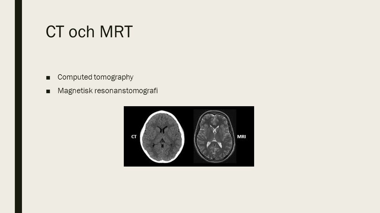 CT och MRT ■Computed tomography ■Magnetisk resonanstomografi