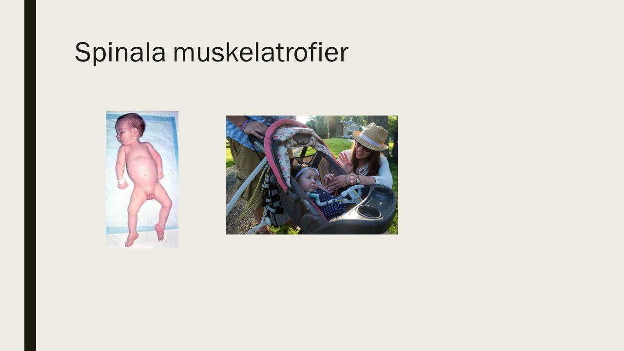 Spinala muskelatrofier