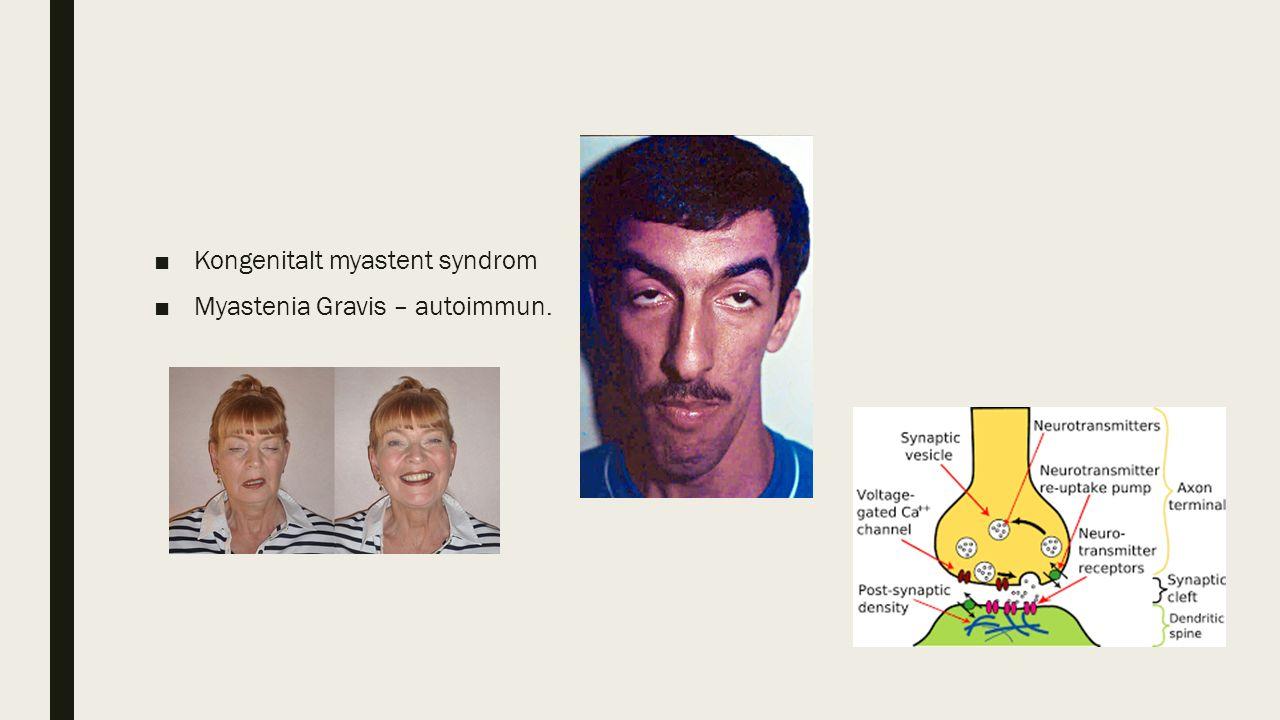■Kongenitalt myastent syndrom ■Myastenia Gravis – autoimmun.