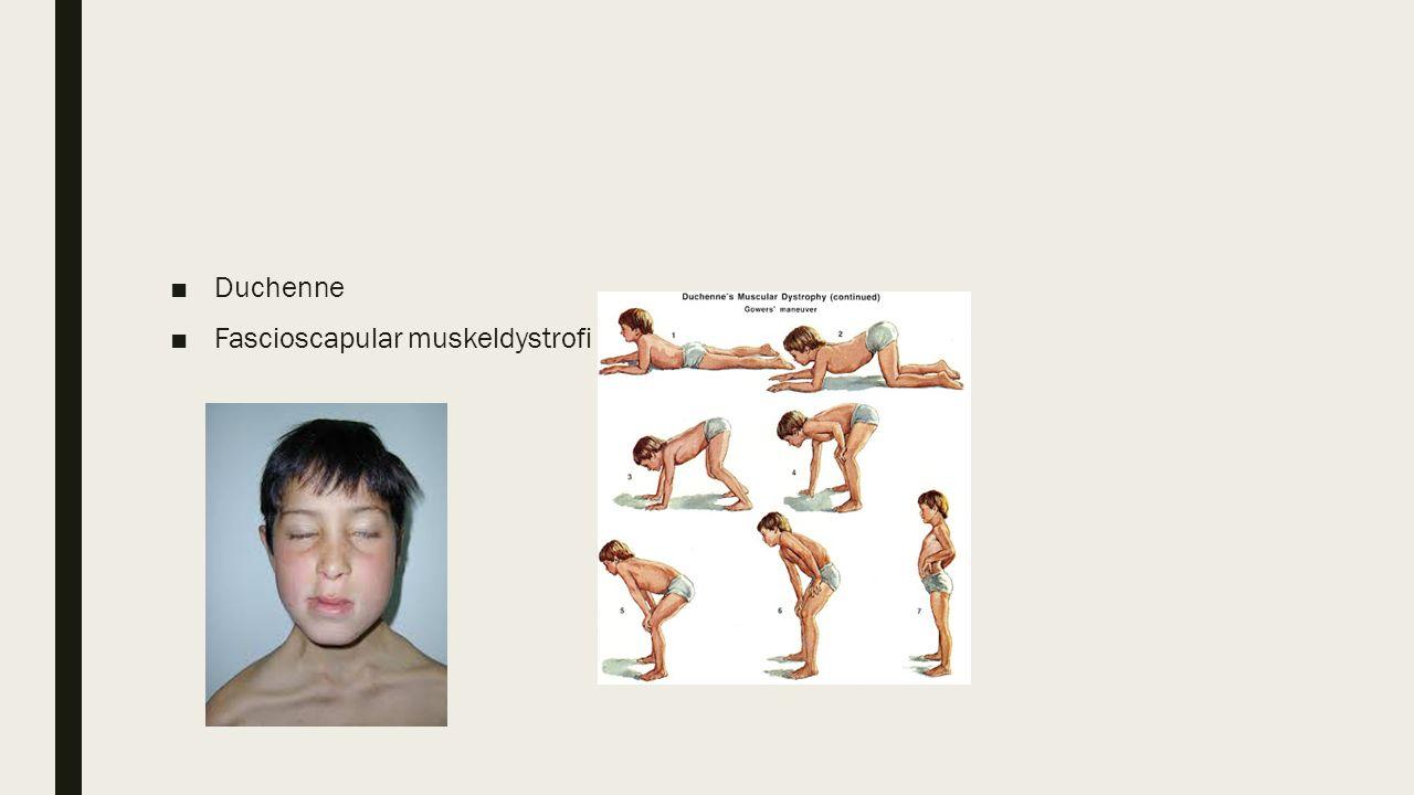 ■Duchenne ■Fascioscapular muskeldystrofi