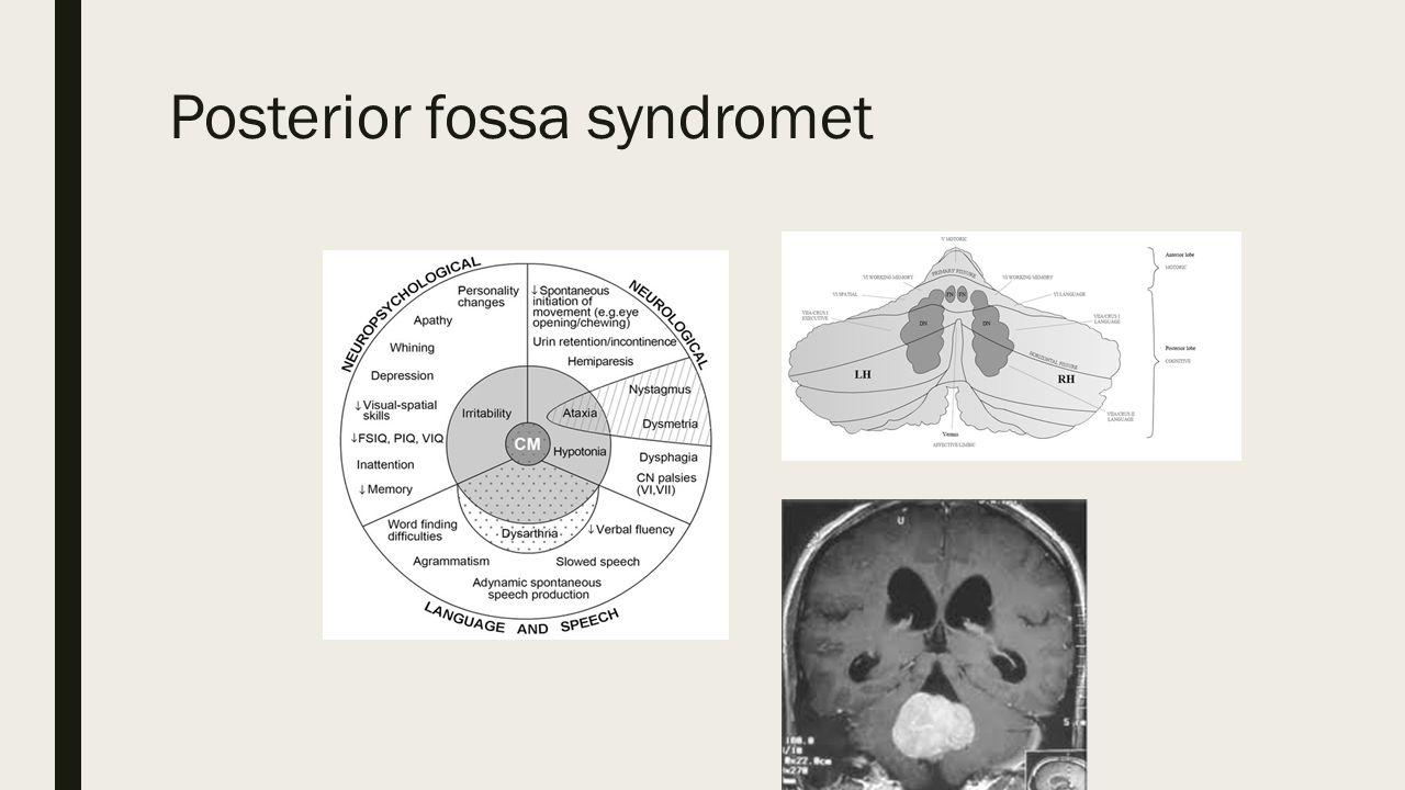 Posterior fossa syndromet