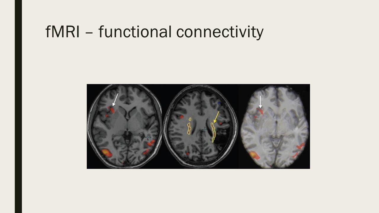 Effective connectivity