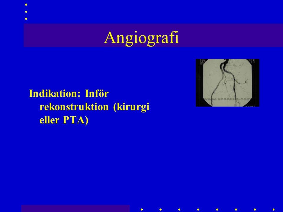 Angiografi Indikation: Inför rekonstruktion (kirurgi eller PTA)
