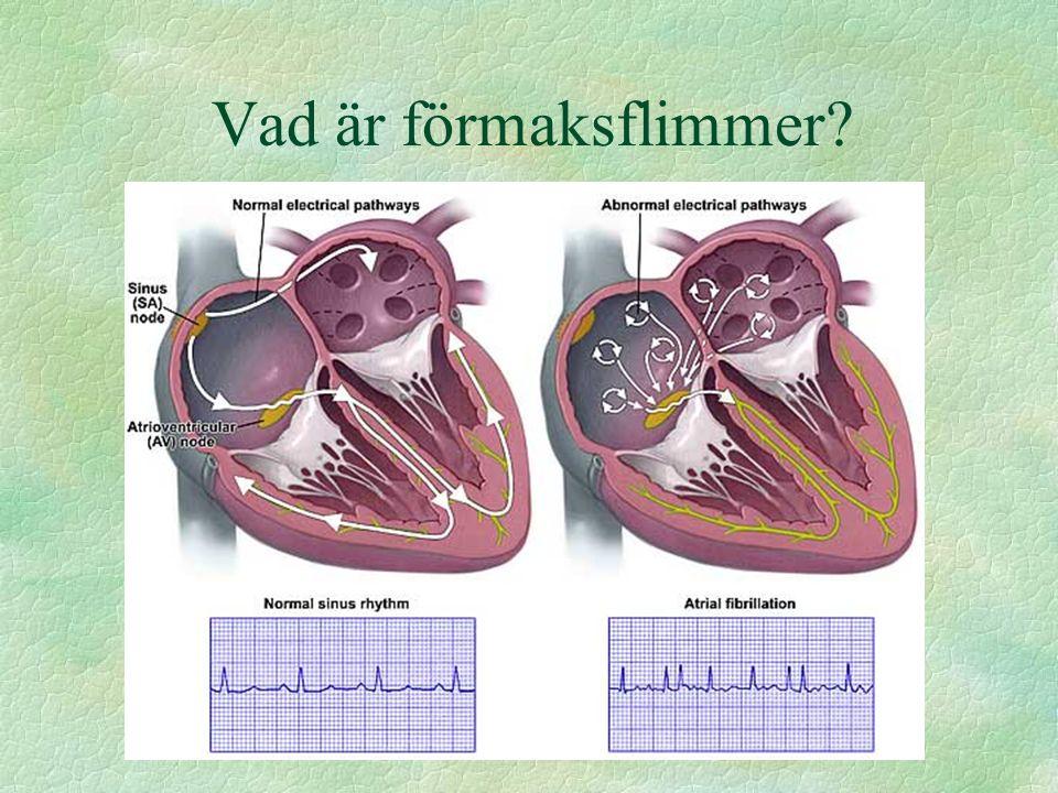 Icke farmakologisk behandling l Lungvensablation l His-ablation bara om lungvensablationer misslyckats eller om hinder finns för lungvensablation l (Maze operation eller liknande)