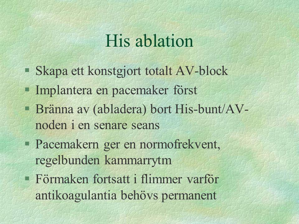 His ablation §Skapa ett konstgjort totalt AV-block §Implantera en pacemaker först §Bränna av (abladera) bort His-bunt/AV- noden i en senare seans §Pac